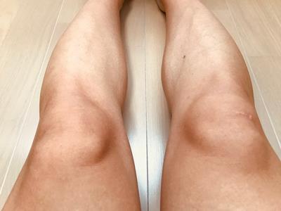 除毛した足