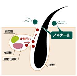 汗を餌に細菌が繁殖